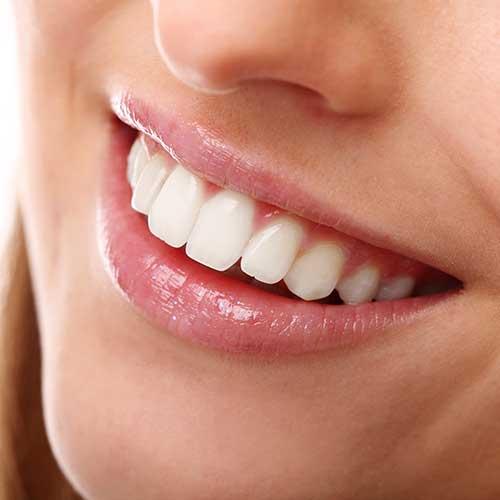 Cosmetic Dentistry | Ultima Dental Wellness | SW Calgary Dentist in Kingsland