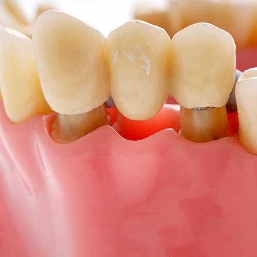 Dental Bridges | Ultima Dental Wellness | SW Calgary Dentist in Kingsland