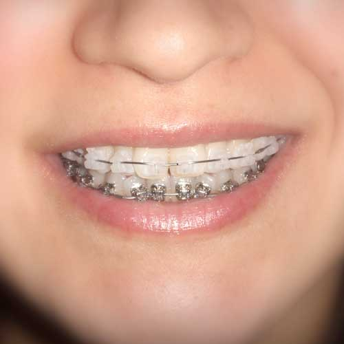 Insignia Braces | Ultima Dental Wellness | SW Calgary Dentist in Kingsland