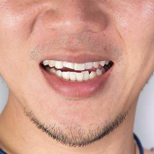 Orthodontic Dentistry | Ultima Dental Wellness | SW Calgary Dentist in Kingsland