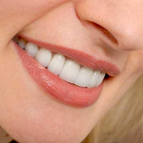 Porcelain Veneers | Ultima Dental Wellness | SW Calgary Dentist in Kingsland